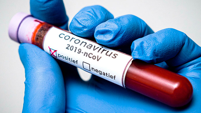 COVID-19 диагностика и лечение